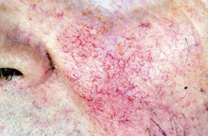 rosacée médecine docteur savary paris